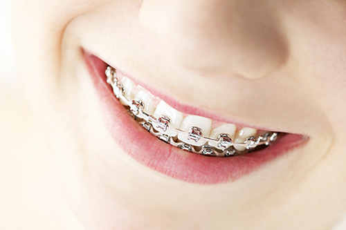 braces in coldwater