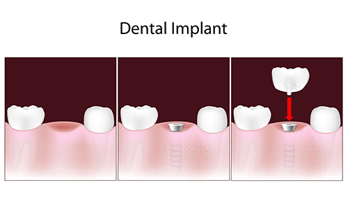dental implants in coldwater